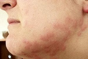 bed bug bites on the cheek